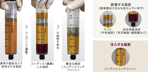 コンデンスリッチファットは、従来注入していた、オイルや赤血球様液体などの不純物を除去します。