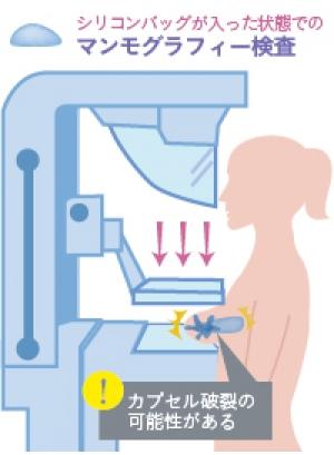 乳がん検査 豊胸