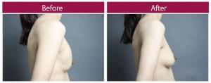 シリコンバッグ抜去 脂肪注入 症例写真