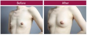 脂肪豊胸 デコルテ 症例写真