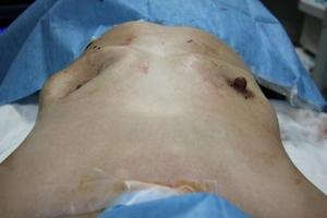 豊胸手術 シリコンバッグ抜去 症例画像
