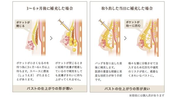 豊胸手術 シリコンバッグ抜去 脂肪注入