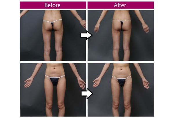 豊胸手術 脂肪注入 脂肪吸引