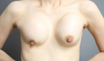 豊胸シリコンバッグ破損から数年放置……抜去だけで胸の形は戻る?【難しい症例2】