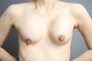 豊胸手術 シリコンバッグ 失敗画像