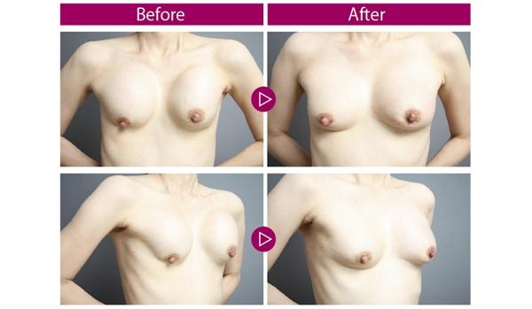 豊胸手術 シリコンバッグ 症例画像