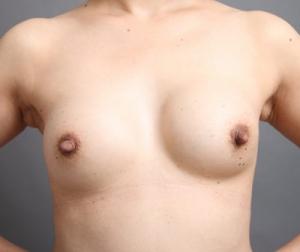 豊胸手術 拘縮 石灰化 画像