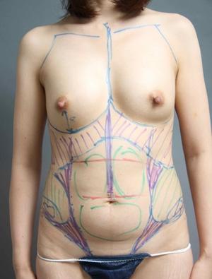 脂肪採取 画像 デザイン