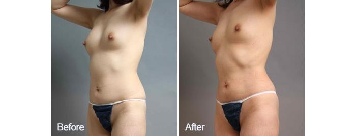 シリコンバッグ 脂肪注入 脂肪採取