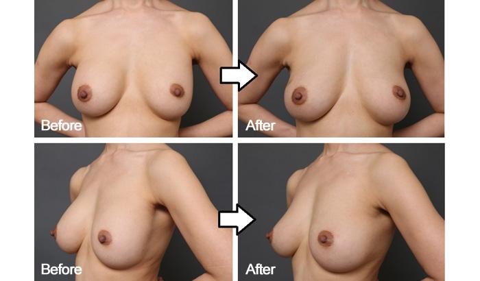 豊胸手術 失敗 画像 症例