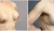不自然な胸を改善! 豊胸バッグ除去のビフォーアフター画像