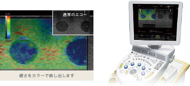 硬さや血流も視覚化する乳腺用エコー