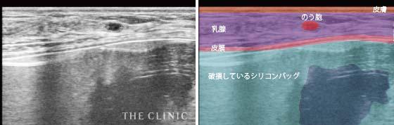 シリコンバッグ破損(皮膜内破裂)+のう胞