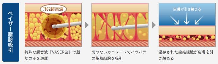 豊胸手術 脂肪吸引
