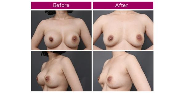 豊胸手術 シリコンバッグ 脂肪注入