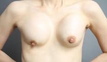豊胸シリコンバッグ破損から数年放置……抜去だけで胸の形は戻る?【難しい症例2】 イメージ画像