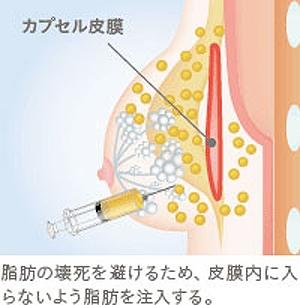 豊胸脂肪注入 しこり 防ぐ
