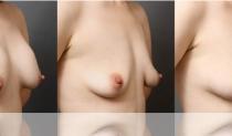 シリコンバッグ除去手術と同日の脂肪注入豊胸NGケースとは? イメージ画像