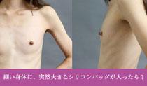 シリコンバッグ豊胸を痩せ型の人が行った場合の2大問題 イメージ画像