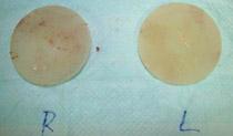 生理食塩水バッグの除去で残る傷跡の大きさは? イメージ画像